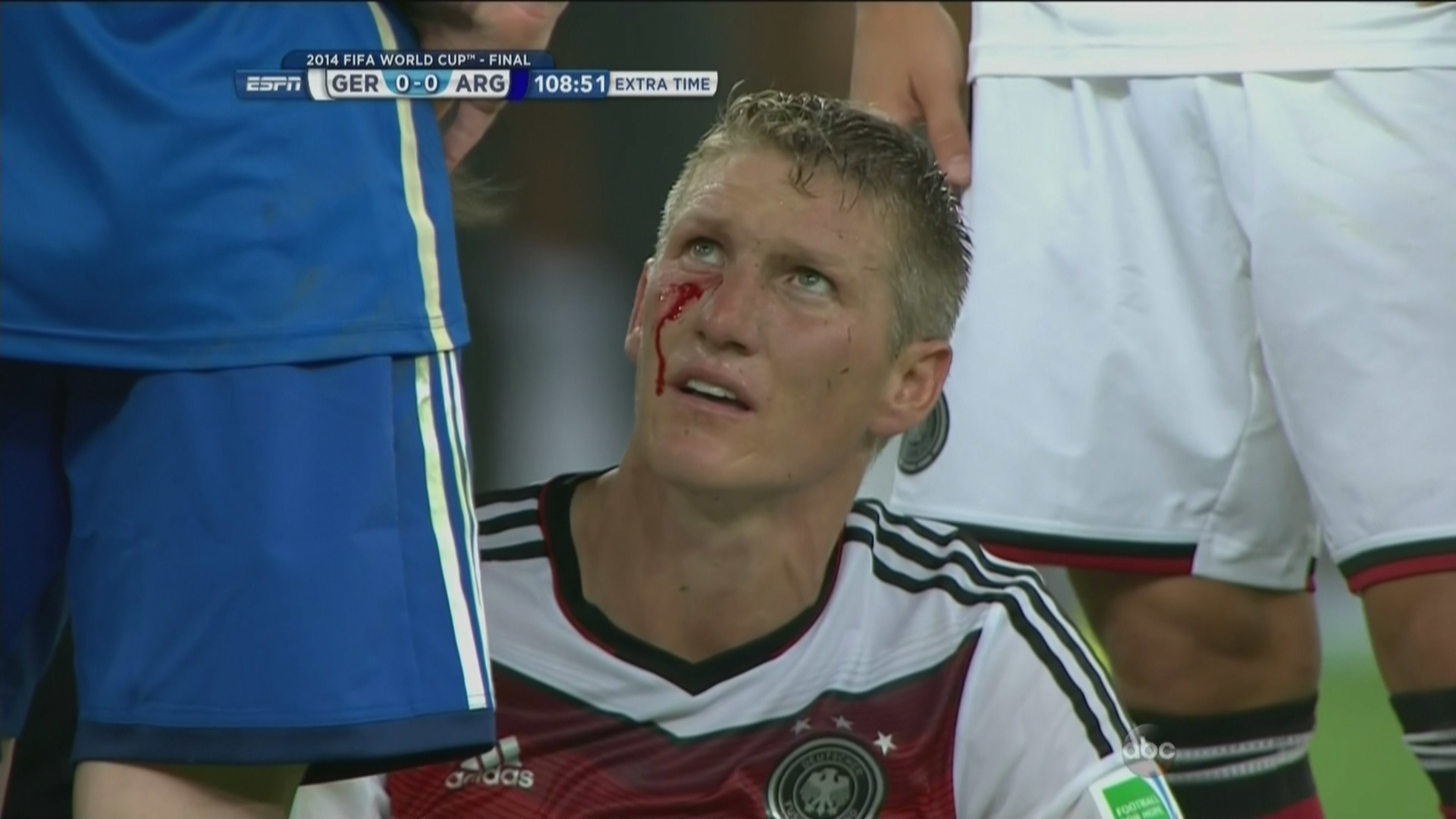 Bastian Schweinsteiger is bleeding SBNation