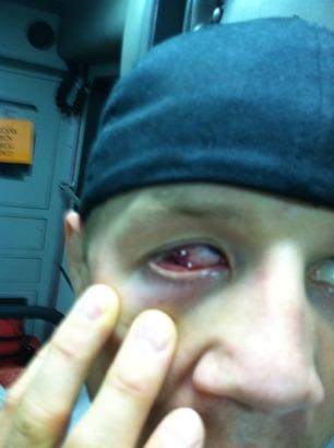 Justin_wilcox_eye