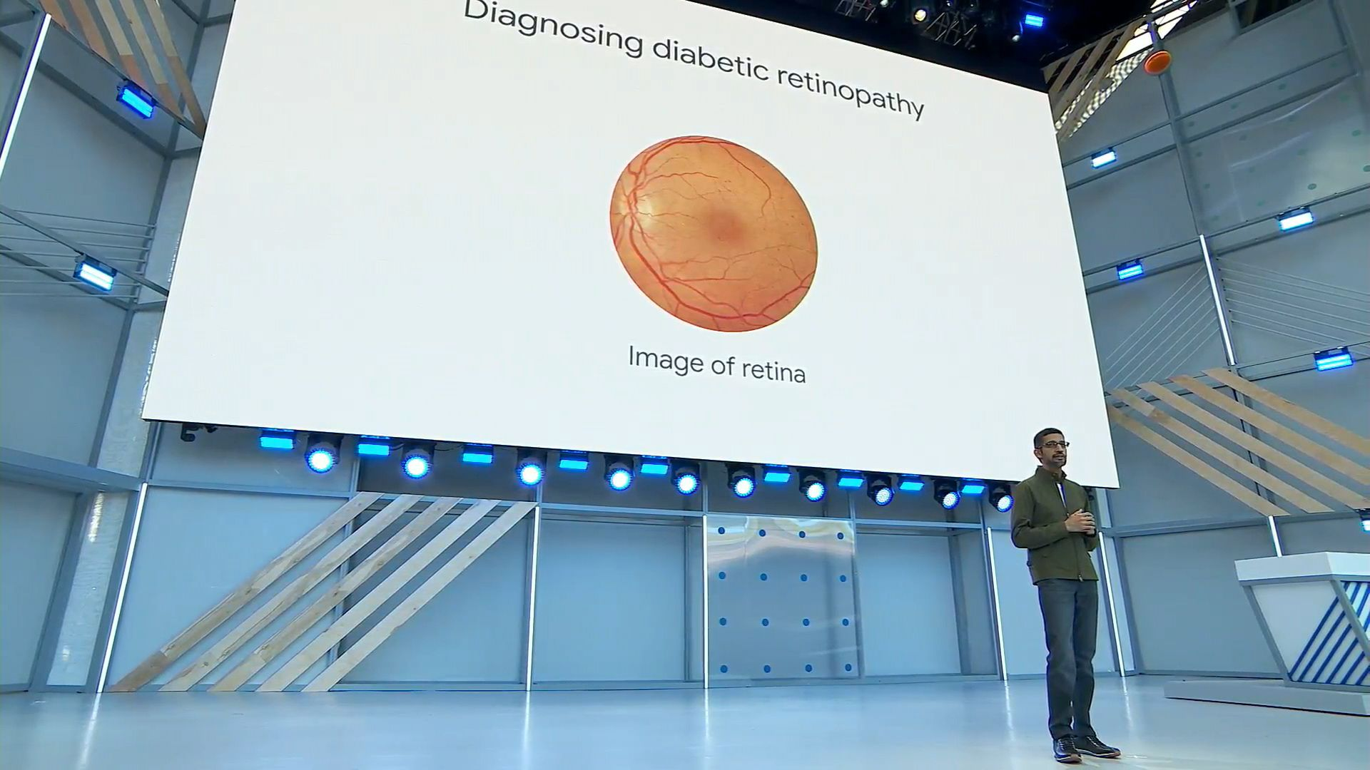 Google's new AI algorithm predicts heart disease by looking at your