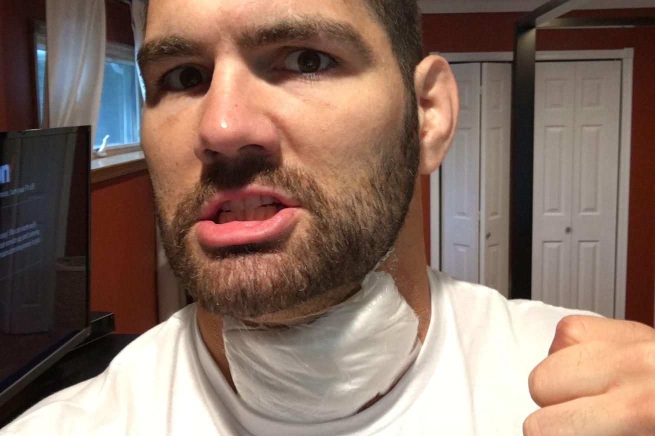 chris weidman undergoes successful neck surgery